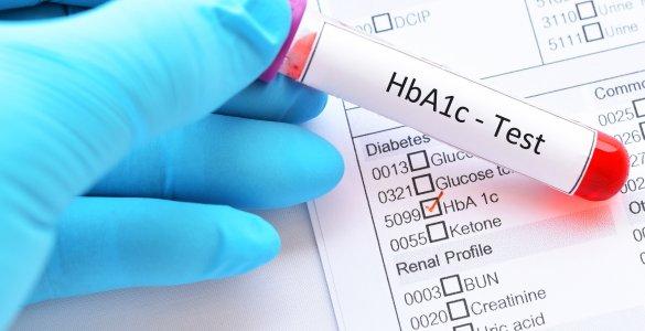 HbA1c-Test