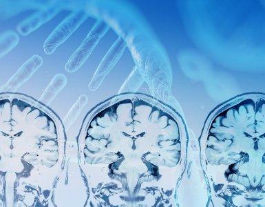 MRT Gehirn