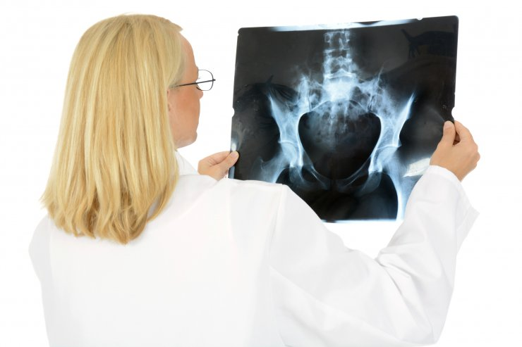 Ärztin betrachtet Röntgenbild