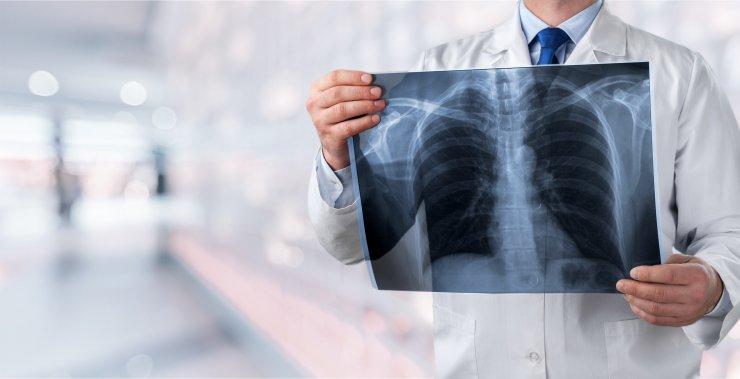 Röntgenbild der Lunge