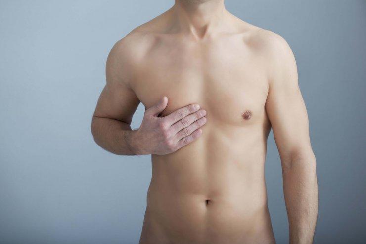 Männern brustkrebs bei Brustkrebs beim
